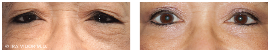 asian blepharoplasty before and after 1