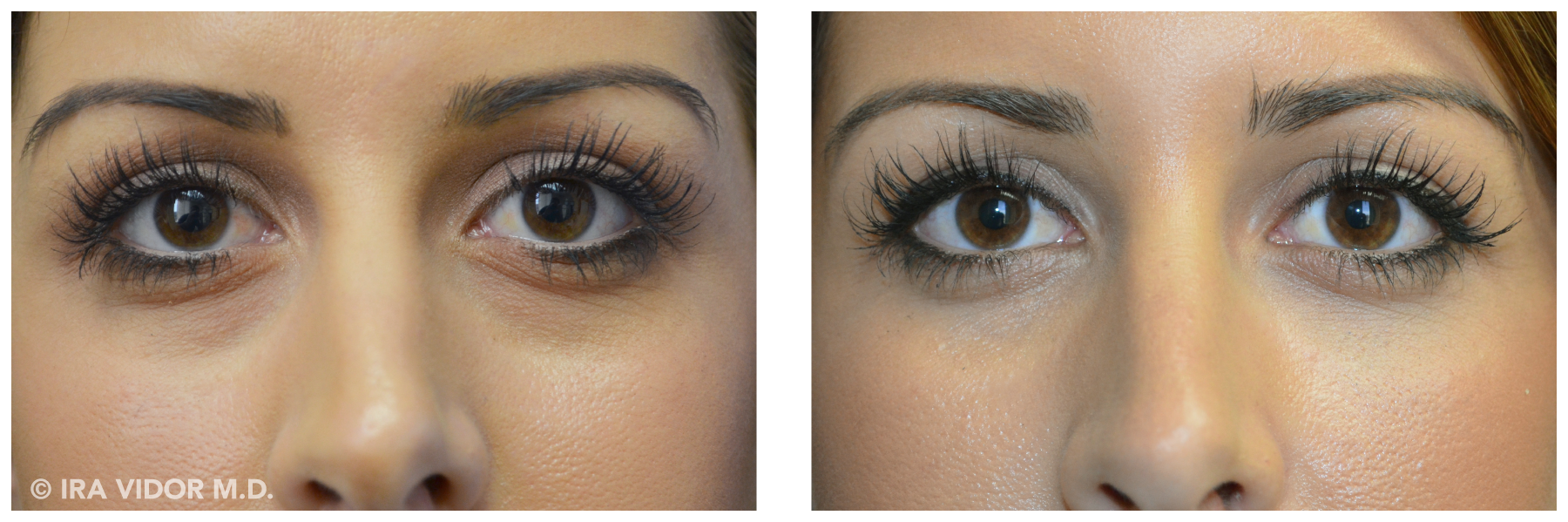 Image set 1. – Pre and post injection – tear trough filler
